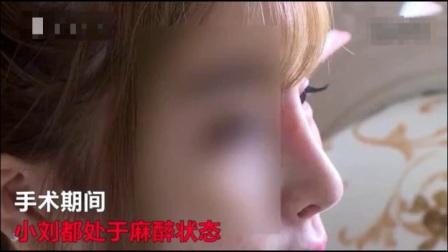 美女花10万隆鼻, 手术失败。鼻子都歪斜外翻了、