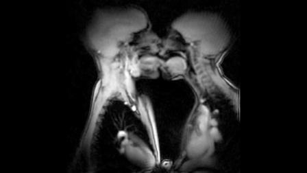 男女接吻(核磁共振成像)
