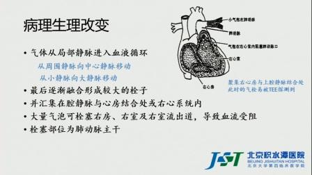 术中目标导向性液体治疗   周雁  教授