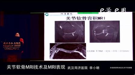 9、2017GE磁共振临床应用技术培训班(武汉站)关节软骨MRI技术及MRI表现
