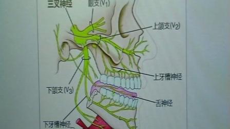 治疗三叉神经痛新疗法