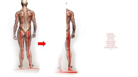 敏斯特ZY026 身姿矫正 足弓矫正鞋垫 扁平足矫正垫 内外八字脚垫