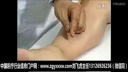 著名针灸专家石学敏院士醒脑针法教学视频 (6)_高清