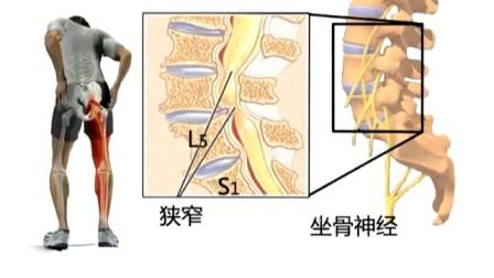 公开课-腰椎间盘突出症