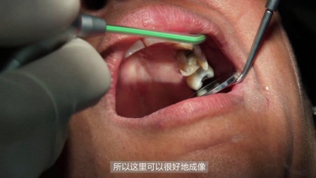 3M 优韧瓷 - 中文字幕Dr. Poticny Inlay-Onlay clinical case video