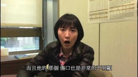 20171221ALLY佳霖(中頂植髮)_.pds