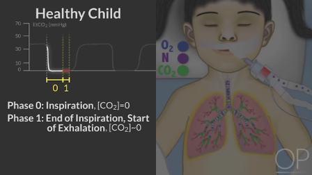 呼吸末CO2波形机制讲座(波士顿儿童医院)