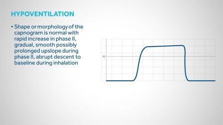呼吸末CO2波形机制解读(国外)