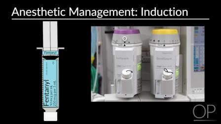 讲座:肺动脉高压患者的围术期麻醉管理