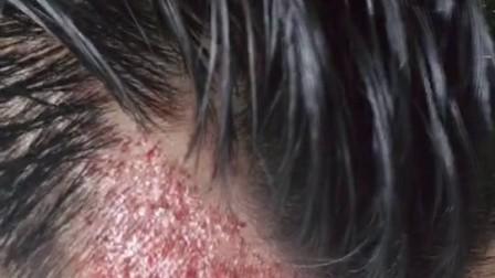 北京植发的危害费用毛囊移植需要多少钱