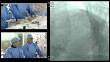 [TCTAP 2017] Coronary Symposium - Live Case Session VI