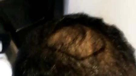 男人秃顶发型植发