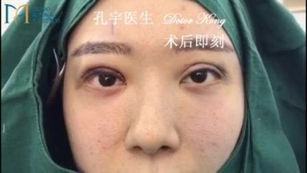 5次双眼皮失败修复