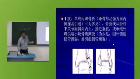 中医伤科学39之23.踝部骨折