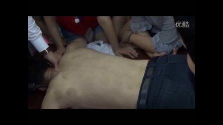 中医教学-王红锦徒手整形--大椎包