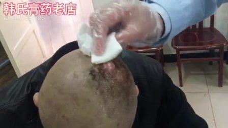 新乡市韩氏膏药(全国总店)治疗头顶生疮