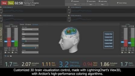 来自神经反馈系统行业的新案例研究!如何使用LightningChart在3D大脑模型上显示脑电活动EEG