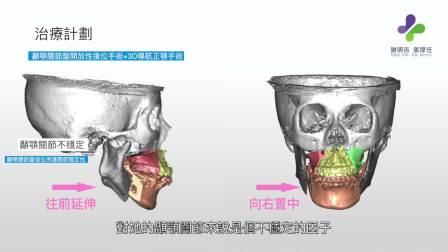 姜厚任医师|3D导航正颚手术合并颞颚关节手术(下)