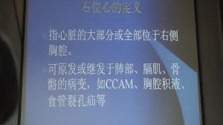 3.右位心的产前超声诊断(曹荔)