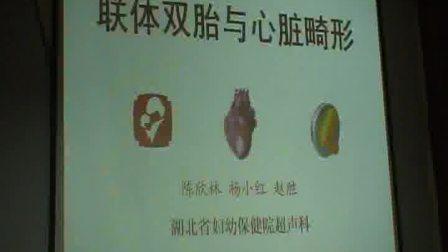 联体双胎与胎儿心脏畸形