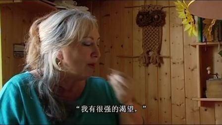 德国医院里的中国医生(3) – 肉店老板遗传肥胖症尝试针灸加中药