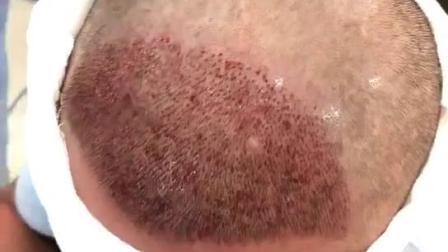 头发为什么会越来越稀少?脱发的主要原因是什么?