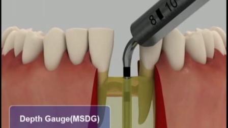 00.植入微型假牙或窄桥种植体