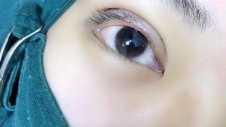 双眼皮培训学习一定要知道的