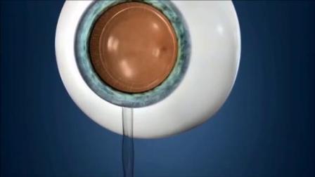 ICL晶体植入术演示动画