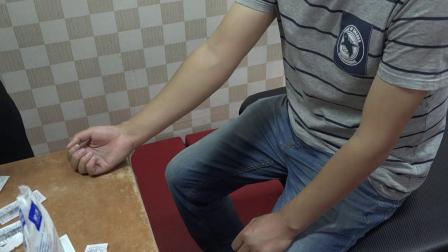 吕晓峰平衡针疗法 降糖穴
