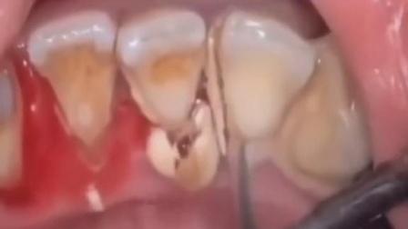 每天都刷牙,为什么牙齿还是这么黄呢,原来是牙膏用错了