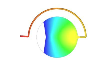 Moldex3D 2020 - 耳流流动模拟分析