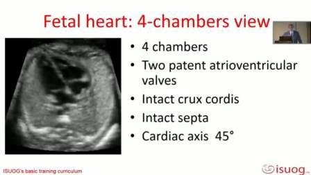 正常中孕胎儿与畸形超声评估 2020