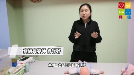 重庆月贝佳月嫂公司月嫂、育儿嫂培训—新生儿湿疹和热疹的处理方法