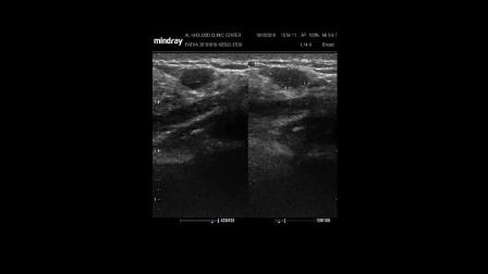 乳腺超声 钼靶与超声对比 breast mammography ultrasound