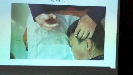 叶颖华肌筋膜松解术真人演示耳鸣耳聋的治疗.mp4