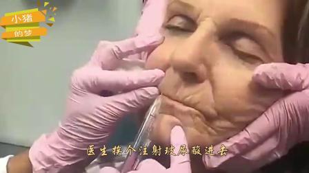 玻尿酸的作用有多强?80岁老奶奶注射,2分钟后大变样!