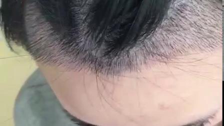 深圳发际线植发调整效果如何?