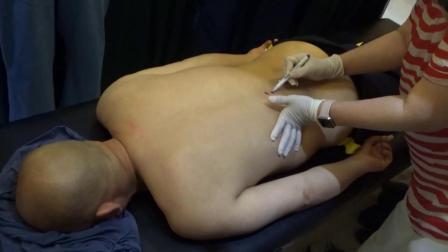 聚医康-新九针颈椎 腰椎病因讲解