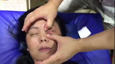 美容塑形教学培训 王红锦徒手整形开眼角