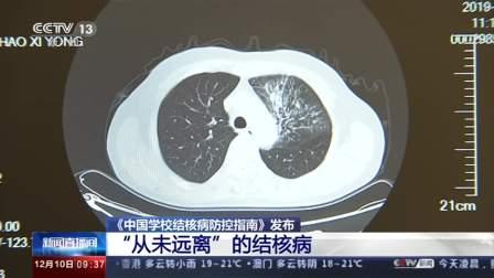 """《中国学校结核病防控指南》发布 """"从未远离""""的结核病"""