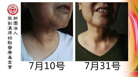a27_甲状腺结节案例