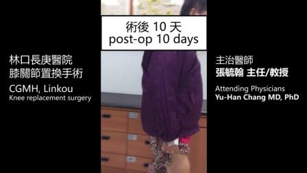林口长庚医院-膝关节置换手术 (术后10天)