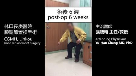 林口长庚医院-膝关节置换手术 (术后六周)