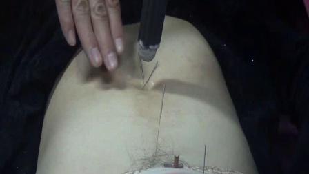 中医针灸推拿培训视频夏连红夏氏脐针-子宫肌瘤的治疗