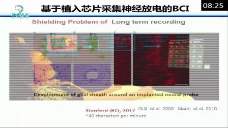 【神外资讯app-云课堂】神经外科病例、技术视频分享:基于脑深部电极信号的意念打字-在癫痫病人中的成功实现-余新光教授(解放军总医院)