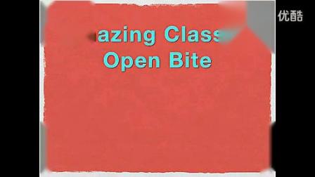正畸病例:Amazing Class III Open Bite_标清