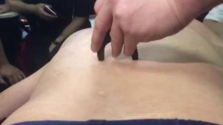 中医正骨推拿培训视频~何强治疗膝关节疼痛手法实操