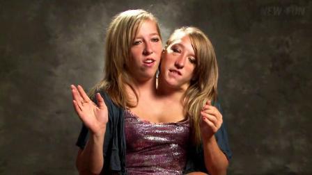 令人难以置信的连体双胞胎生活