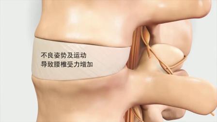 腰椎间盘突出怎么办?专业恢复动作,运动康复!